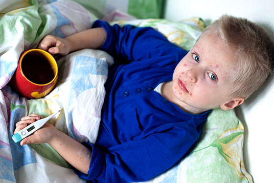 Boy with rubella
