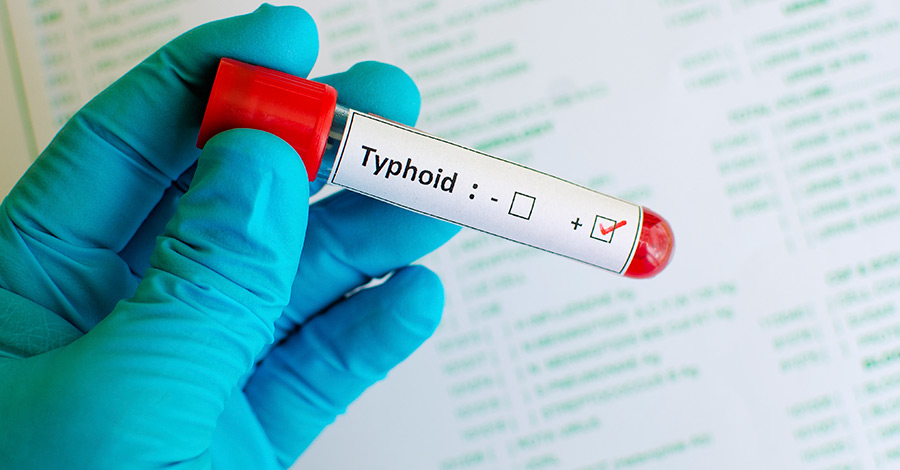 The difference between typhoid and typhus sometimes requires laboratory testing