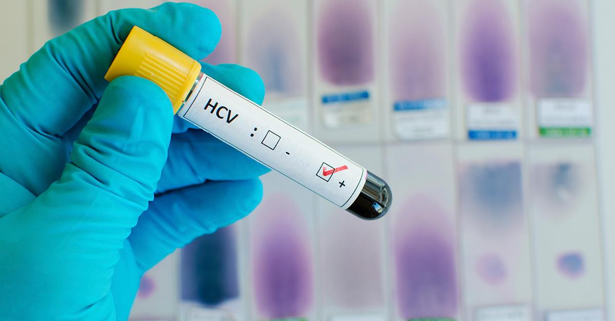 Hepatitis titer testing