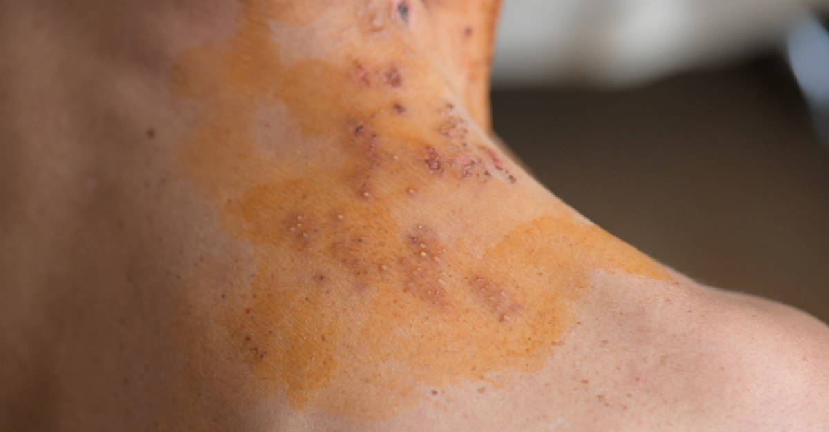 Shingles spreads via the same virus behind chickenpox.