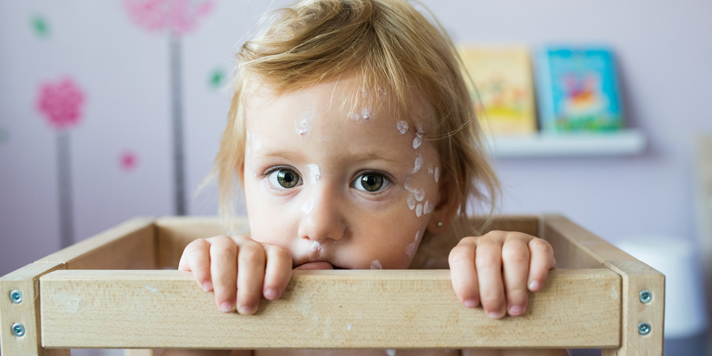 Chickenpox can be a very dangerous disease. Make sure your family is protected.