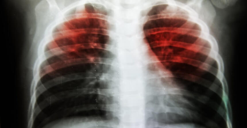 About 20 percent of the world's population could be at risk of latent tuberculosis.