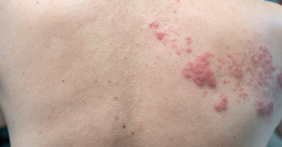 Can Shingles Cause Nerve Damage Passport Health