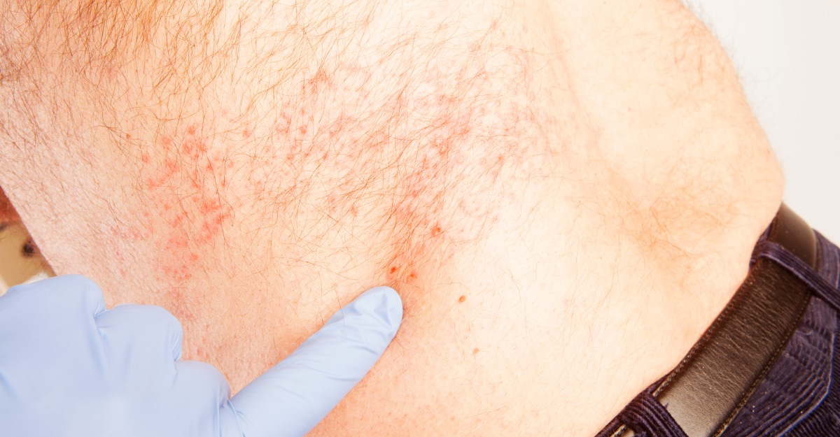 Shingles isn't exclusively present in seniors.