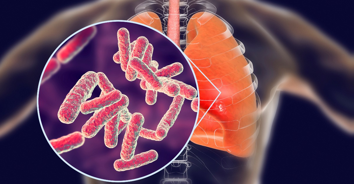 Rather than bacteria, it appears viruses are the root of pneumonia.