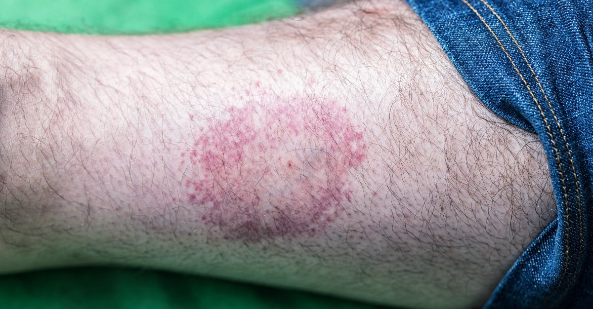 The diseases seem similar, but tickborne encephalitis and lyme disease have many differences.